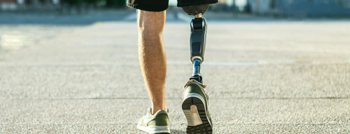 Photo of a man walking with one prosthetic leg.